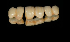 evolution-dental-DL-02